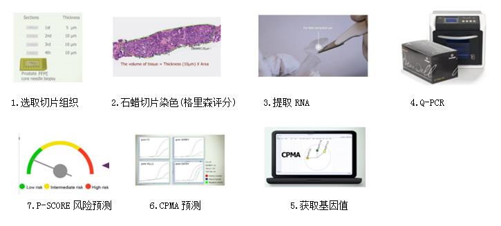 前列腺癌基因检测预后风险评估系统(Prostatype®检测系统)
